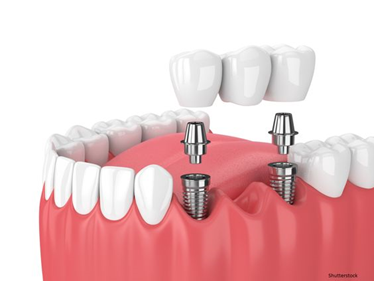 Fixed Implant Bridge/ dr figueroa